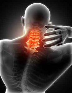 PhysioVive Neck Pain