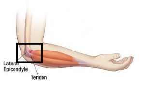 lateral epichondilitis physiotherapy