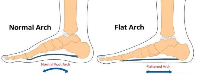Flat Arch plantar fasciitis