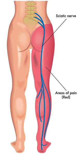 Sciatica Nerve Pain: Symptoms, Tests, and Treatments for Lumbar Radiculopathy: Gallo, Nicholas: 9781794560024: Amazon.com: Books